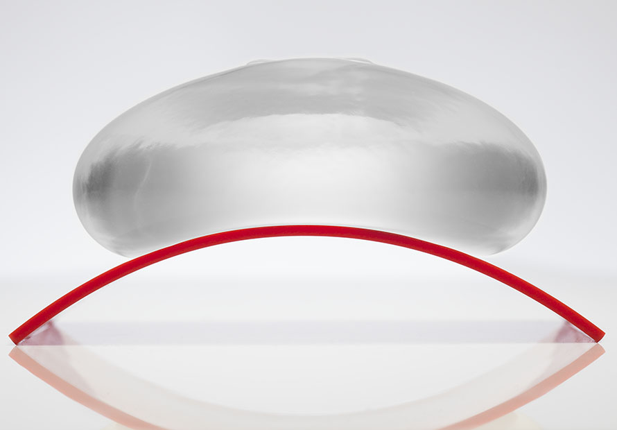 Saline breast implants vs Ideal Implants