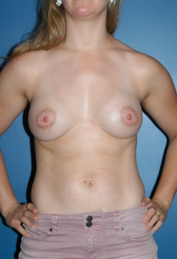 Boston Plastic Surgeon Breast Implants Before and After A1 David Wages MD