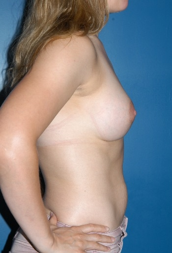 Boston Plastic Surgeon Breast Implants Before and After A2 David Wages MD