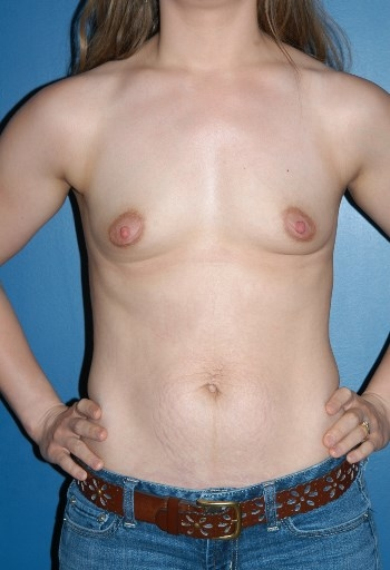 Boston Plastic Surgeon Breast Implants Before and After B1 David Wages MD