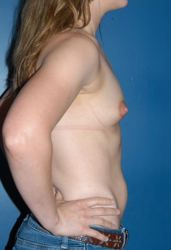 Boston Plastic Surgeon Breast Implants Before and After B2 David Wages MD
