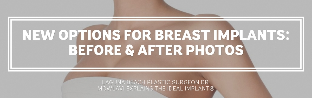 Mowlavi breast augmentation cost - breast implants cost - breast lift laguna beach