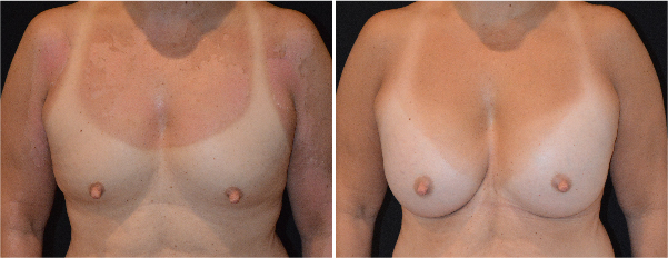 breast augmentation before and after, breast augmentation cost, Breast Implants Northborough Poulos