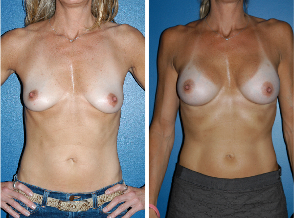 breast implants before and after breast lift Plastic Surgery Boston David Wages front