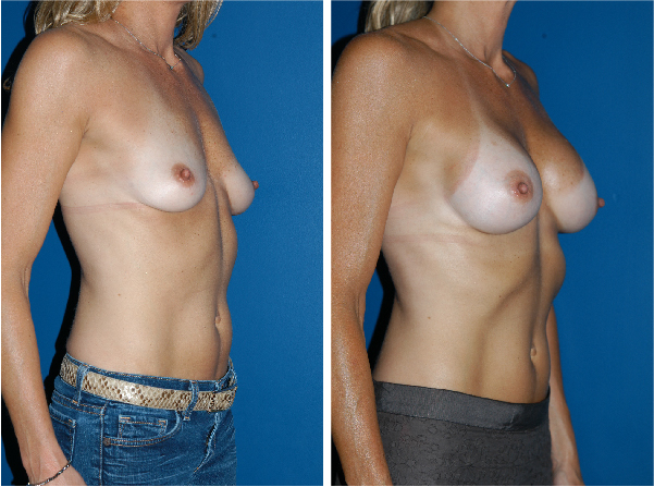 breast implants before and after breast lift Plastic Surgery Boston David Wages oblique