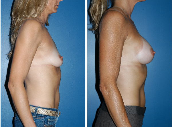 breast implants before and after breast lift Plastic Surgery Boston David Wages side