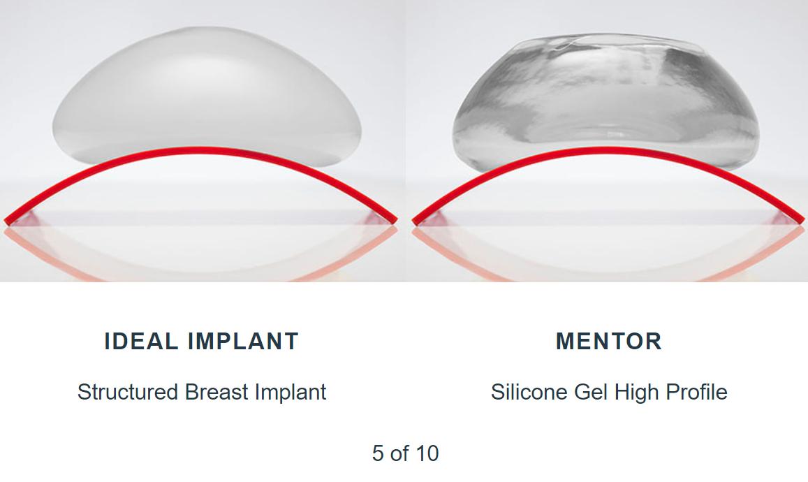 Mentor breast implants