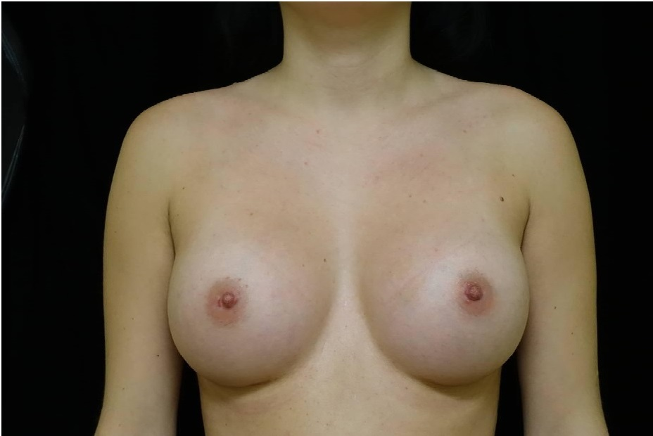breast implant before and after Hagen 1