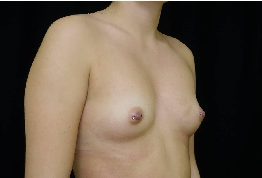breast implant before and after Hagen 4