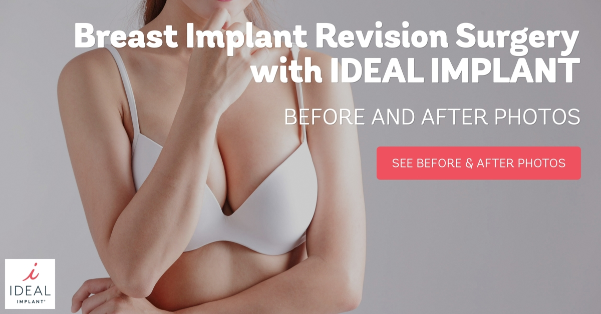 Breast augmentation dallas cost