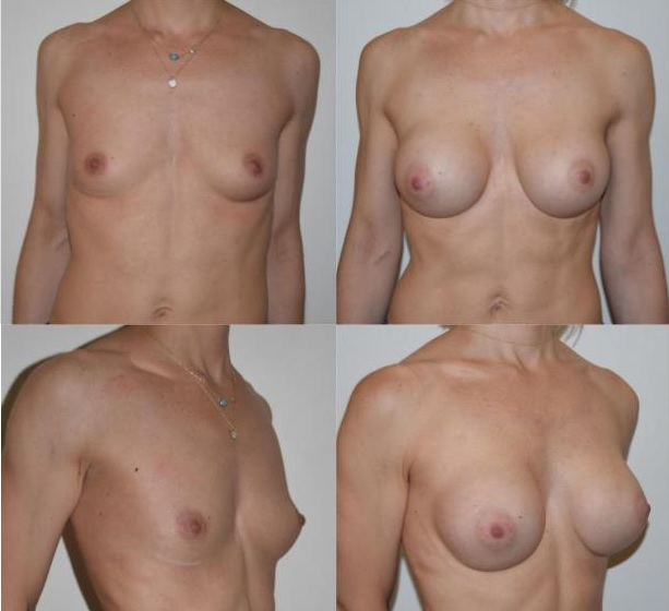 1 - breast augmentation - breast enhancement rapaport