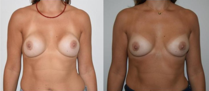 1 - breast implants revision breast augmentation Rapaport
