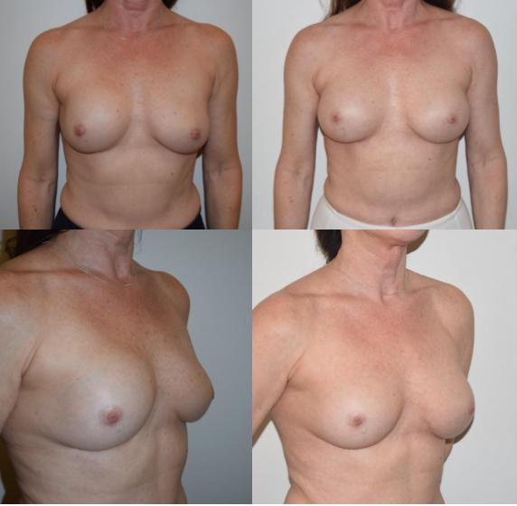 2 - breast implants revision breast augmentation Rapaport