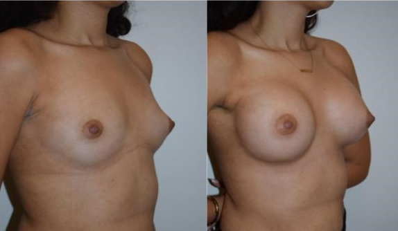 4 - breast augmentation - breast enhancement rapaport