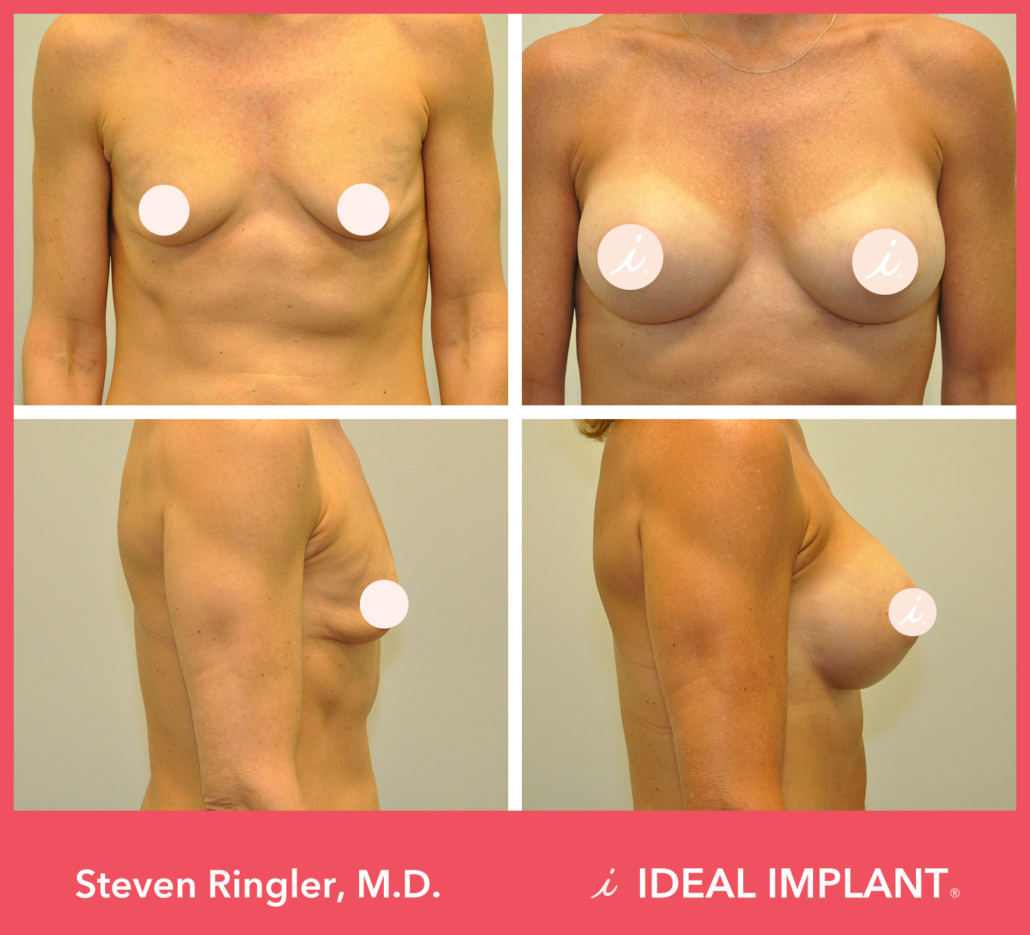 Dr. Ringler Breast Implant Before and After
