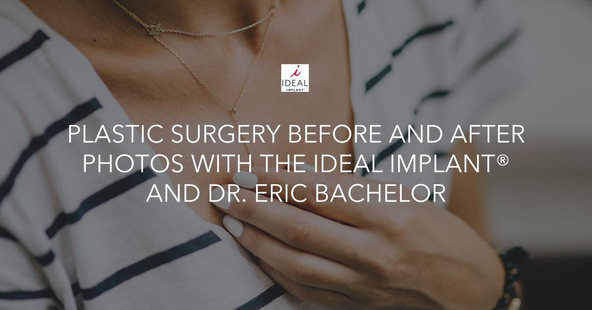 Plastic Surgery Before And After Photos With Ideal Implant-2772