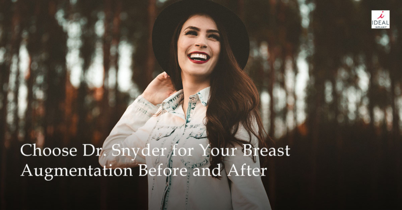Breast Implant Blog  Ideal Implant-8697